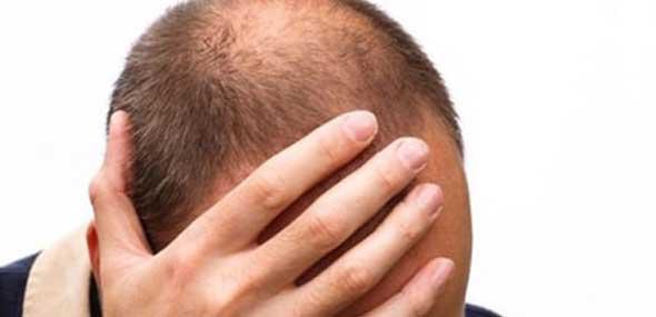 Glatze verhindern